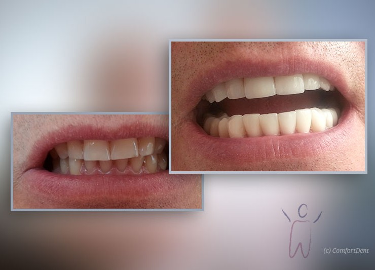Dental veneers from porcelain