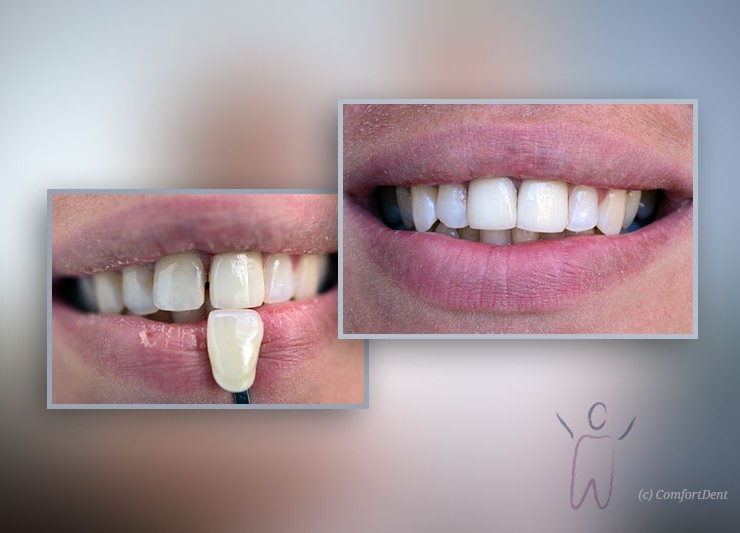 Fixed Prosthodontics with Porcelain Veneers